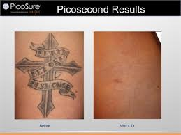 tattoo removal with picosure greenwich ct