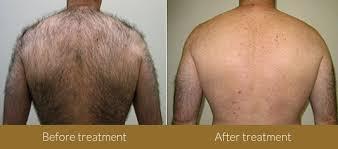 hair reduction skin specialist delhi india skin care