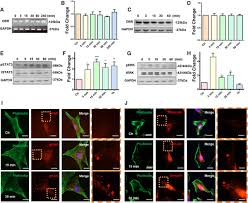 Leptin Induces Sca 1 Progenitor Cell Migration Enhancing Neointimal