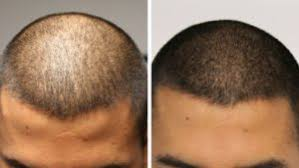 pics of scalp micropigmentation on people with long hair scalp micropigmentation lu lu beauty bar