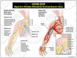 Anatomy Of The Right Arm Medical Art Right Arm Muscles Affected By Brachial Stretch
