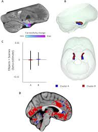 functional topography of the human entorhinal cortex elife