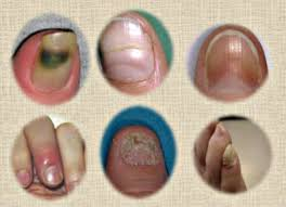 what are the common nail problems