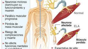 Challenge Que Es Challenge Sabes Qué Es La Esclerosis Lateral