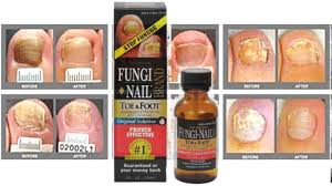 fungi nail youtube