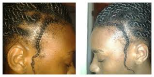 cover bald edges braid styles regrow your edges naturally black zulu