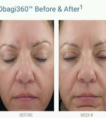 omi young obagi obagi 360 retinol 1 0 younger looking skin for 20s 30s acne