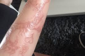 natasha hamilton warns of dangerous henna tattoo after son has