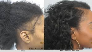 hair transplant for black women women s hair transplant in los angeles