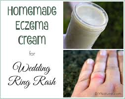 wedding ring rash eczema relief for wedding ring rash and more