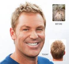 shane warne hair loss warnie before and after results