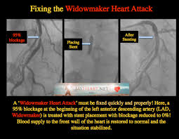 Anatomy Of The Heart Lab The Widowmaker Part Ii U2013heart Hanging By A String