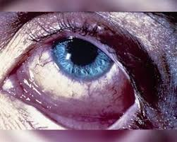 pink eye pictures and what does conjunctivitis look like