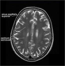 Axial Mri Brain Anatomy Pin By Shaikh Rahim On Radiology Pinterest Brain Anatomy And