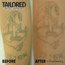 tailored tattoo removal tattoo 60 keilor rd essendon north