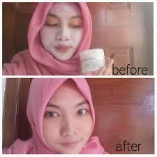 Jual Masker Mata Collagen Di Surabaya chocolicious