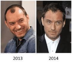 shane warne hair transplant male celebrities who underwent hair transplant