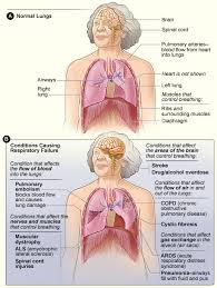 What Portion Of The Brain Controls Respiration What Causes Respiratory Failure Nhlbi Nih