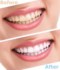 teeth whitening this procedure brightens teeth that are