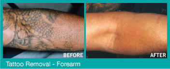 laser tattoo removal smith laser treatment skin care canada