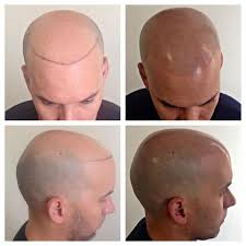 best hairtransplant in the world best hair transplant phoenix revive hair restoration phoenix az