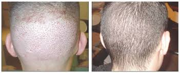 neograft recovery timeline fue hair transplant los angeles by top plastic surgeon