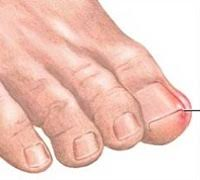 nail bed pain what causes pain in toenail new health guide