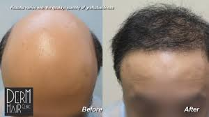 how thick is 1000 hair graft hair transplant graft count how many grafts do i need