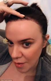 queen brooklyn hairline maria fowler proudly parades results of hair transplant daily