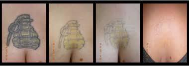 laser tattoo removal reno tattoo modification tattoo removal service