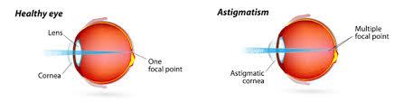 Astigmatism Night Blindness Astigmatism Long Jpg