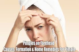 Face Mapping Acne Pimples On Forehead Causes Easy Treatments And Home Remedies