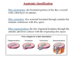 intervertebral disc anatomy and pivd of lumbar spine and its manageme
