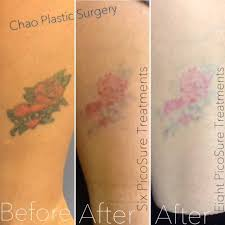laser tattoo removal albany new york chao plastic surgery