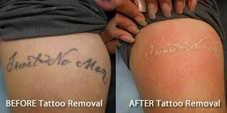 salabrasion tattoo removal popular tattoo ideas