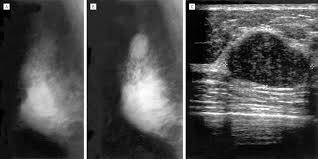 diagnosis and treatment of breast fibroadenomas by ultrasound