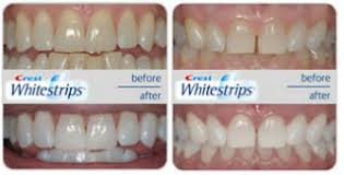 crest supreme whitening strips teeth whitening with whitestrips4u co uk compare crest whitestrips