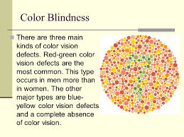Most Common Type Of Color Blindness The Eye Structure External Parts Of The Eye Tear Duct Ppt