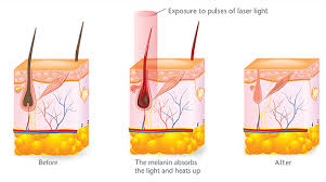 palomar laser hair removal reviews laser hair removal clinic melbourne cbd laser hair removal costs
