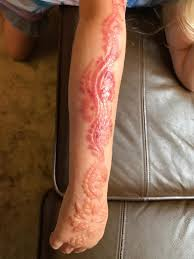7 is u0027scarred for life u0027 after suffering chemical burns from