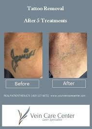 laser tattoo removal ohio lima celina findlay