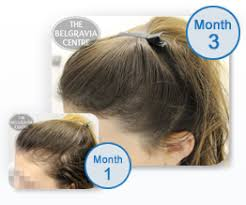 womans hair thinning on sides hair loss in women a guide
