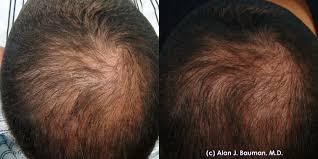 Women Hair Loss Treatment Prp Platelet Rich Plasma Acell Biod Ecms Bauman Medical Group