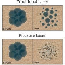 picosure tattoo removal uk andrea catton laser clinic burnley