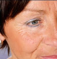 How Does Light Therapy Work Anti Aging Red Light Therapy In Woodland Hills Encino Studio