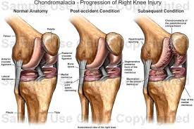 Anatomy Of Knee Injuries Chondromalacia Progression Of Right Knee Injury Medical