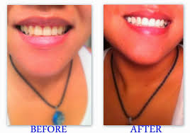 led light for teeth what does the led light do for teeth whitening americanwarmoms org
