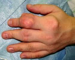 knoten handinnenfläche rheumaknoten diagnose operation pro