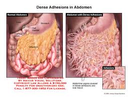 Anatomy Of Stomach And Intestines Abdomen U2013 Anatomy Exhibits