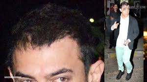 aamir khan hair transplant does aamir khan need a hair transplant youtube